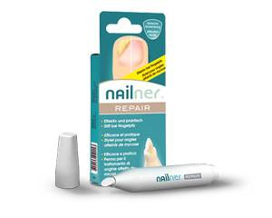 Nailner repair